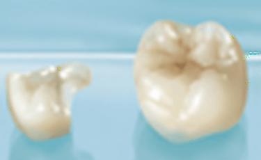 専任の歯科技工士による最終仕上げ