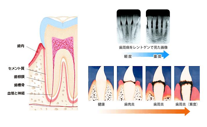 歯周病の仕組み