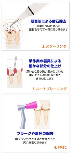 歯垢とバイオフィルム